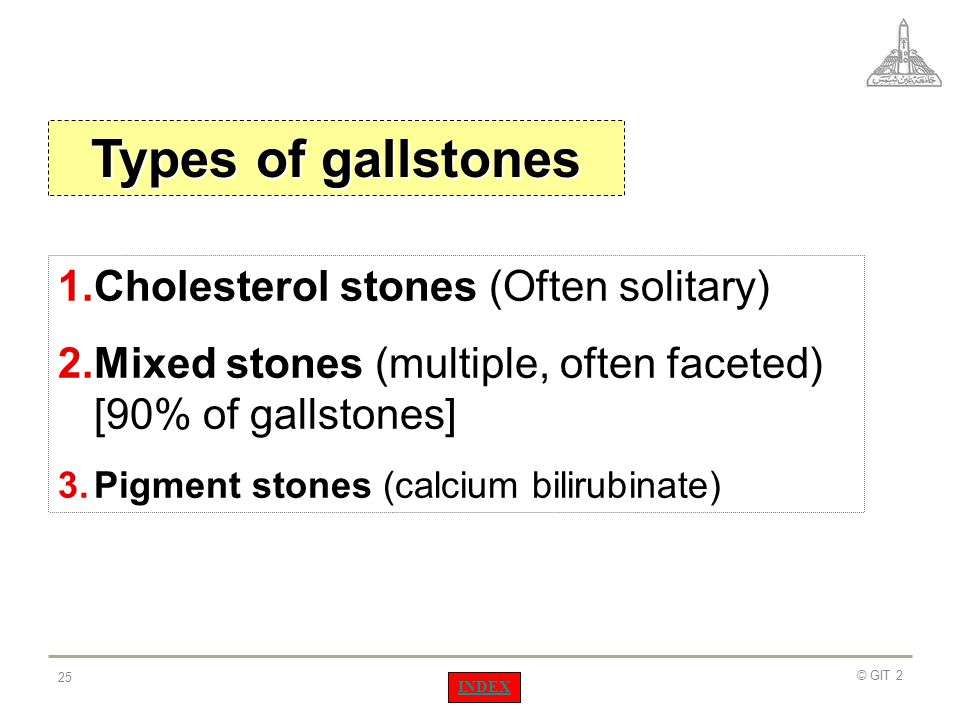 Types of gallstones Cholesterol stones (Often solitary)