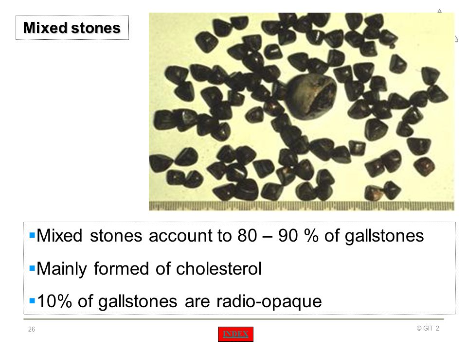 Mixed stones account to 80 – 90 % of gallstones