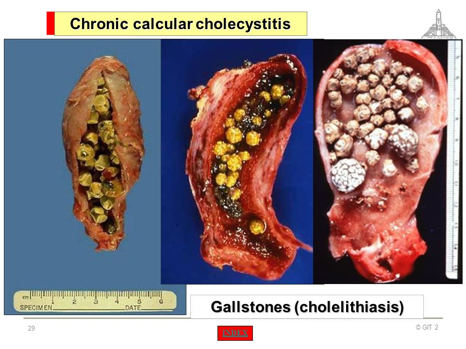 Chronic calcular cholecystitis