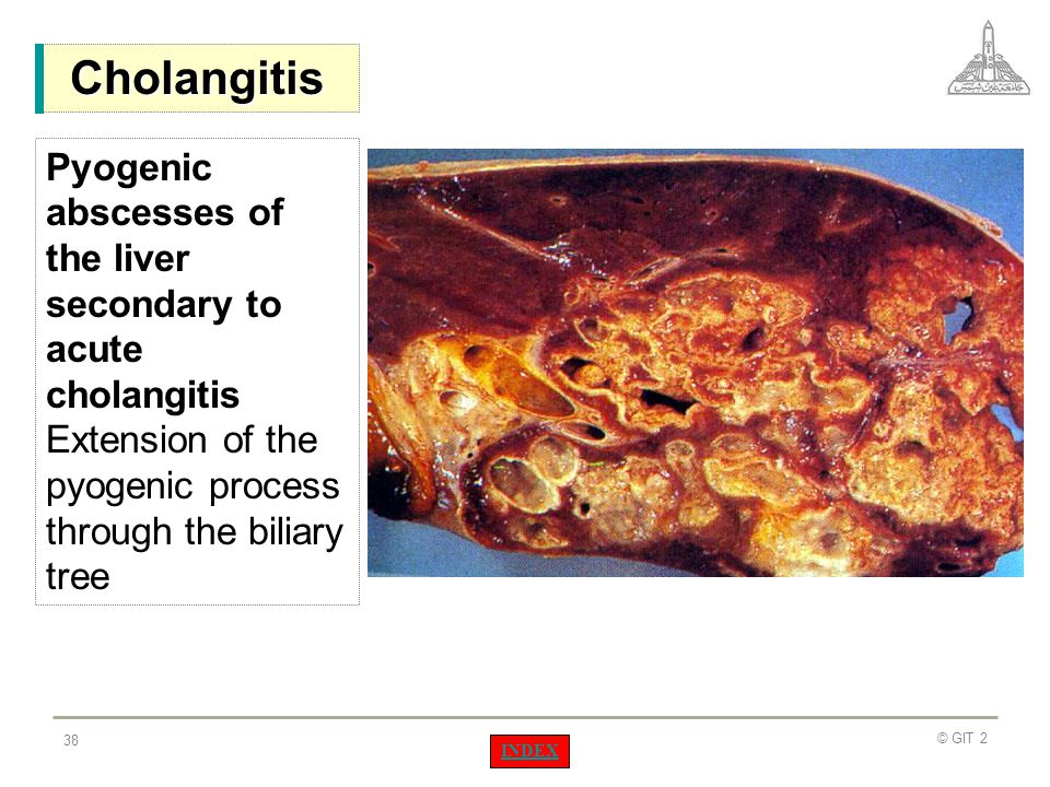 Cholangitis Pyogenic abscesses of the liver secondary to acute cholangitis Extension of the pyogenic process through the biliary tree.