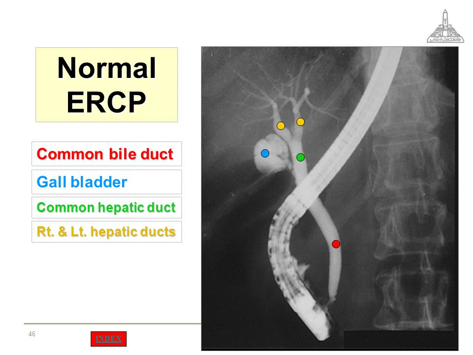 Normal ERCP Common bile duct Gall bladder Common hepatic duct