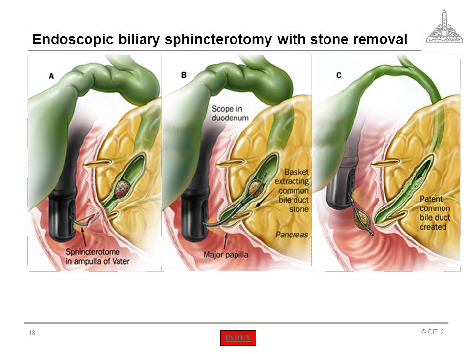 Endoscopic biliary sphincterotomy with stone removal