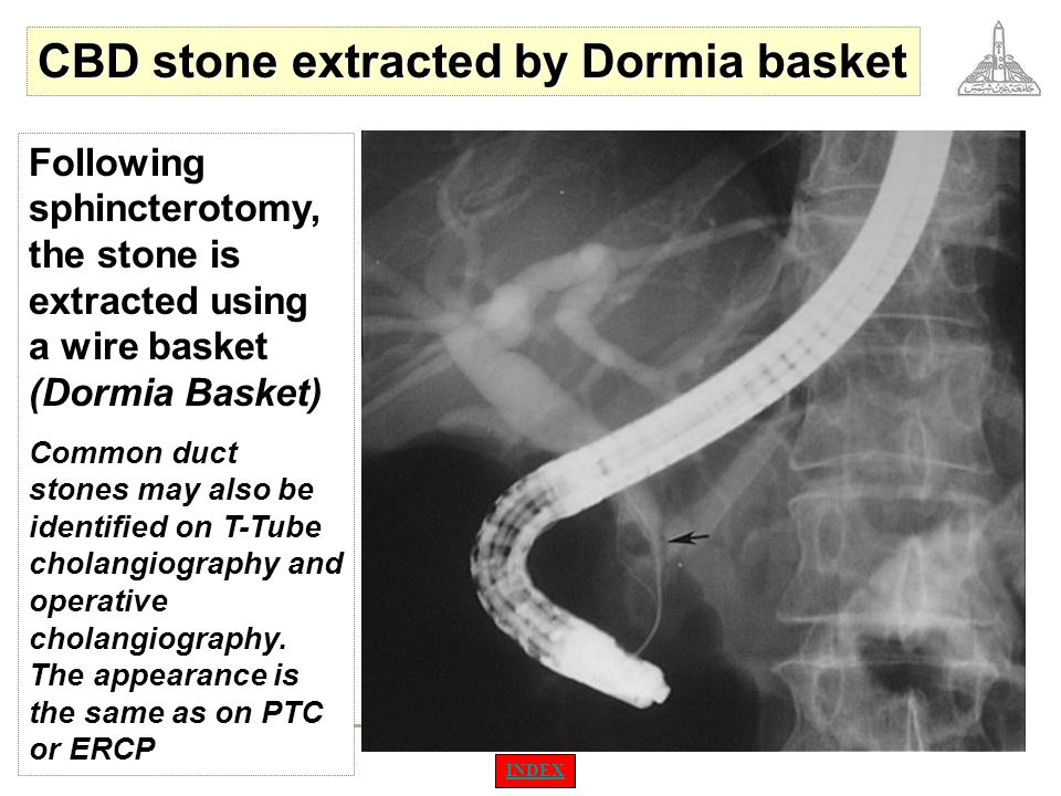 CBD stone extracted by Dormia basket