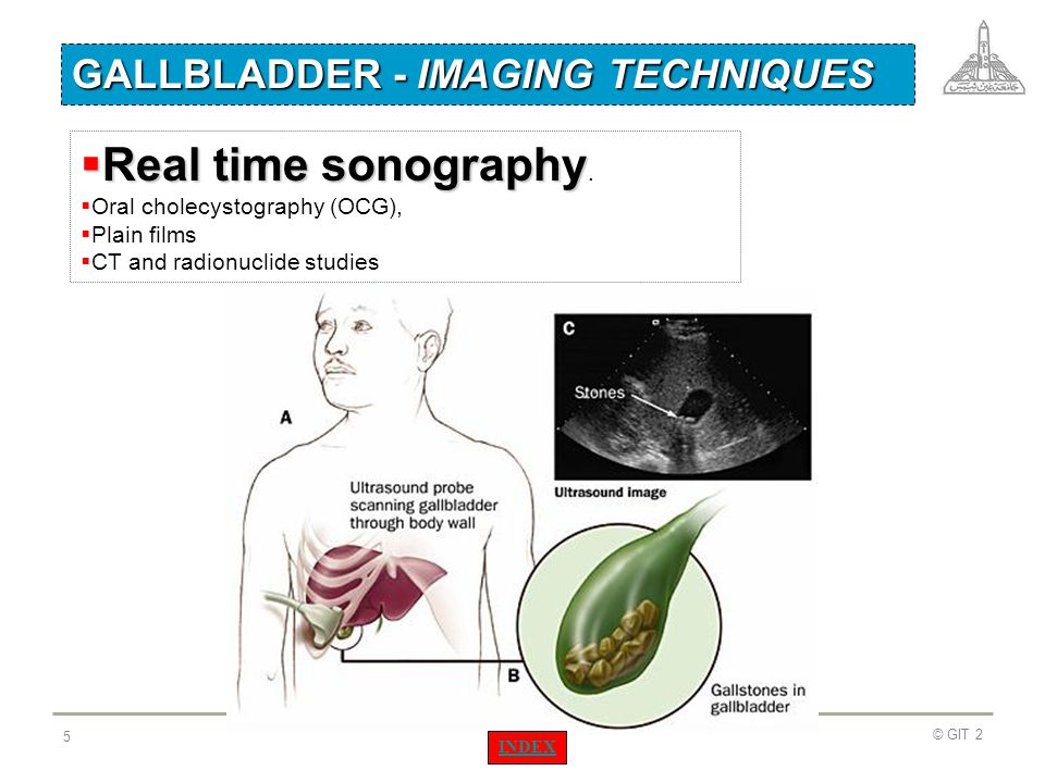 Real time sonography. GALLBLADDER - IMAGING TECHNIQUES
