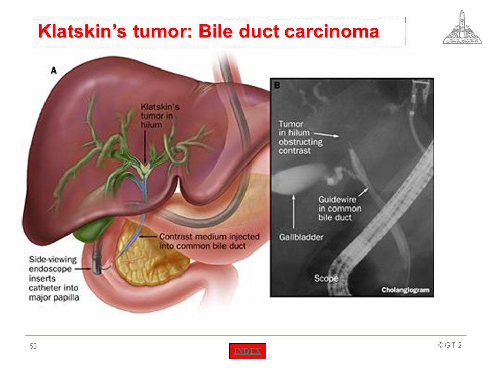Klatskin's tumor: Bile duct carcinoma