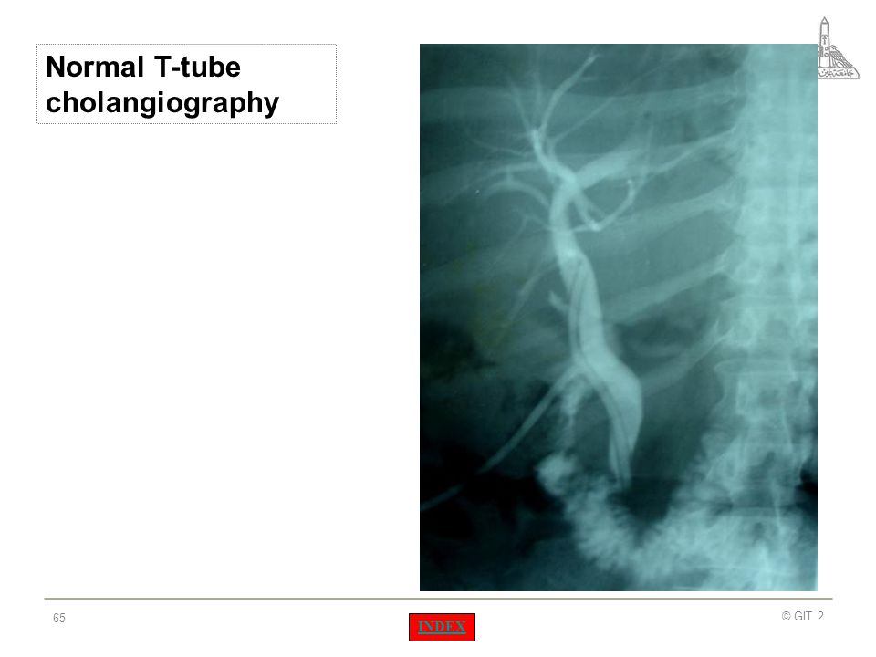 Normal T-tube cholangiography