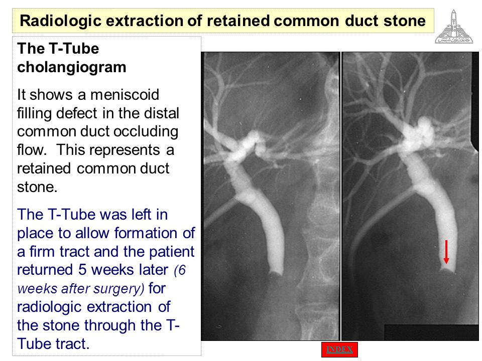 Radiologic extraction of retained common duct stone