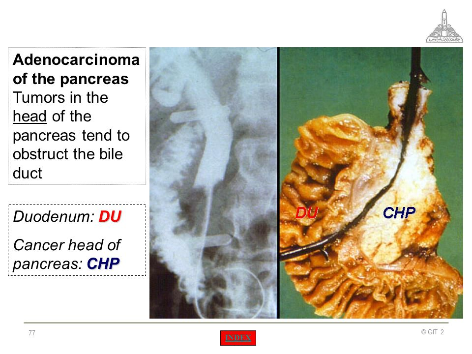 Cancer head of pancreas: CHP