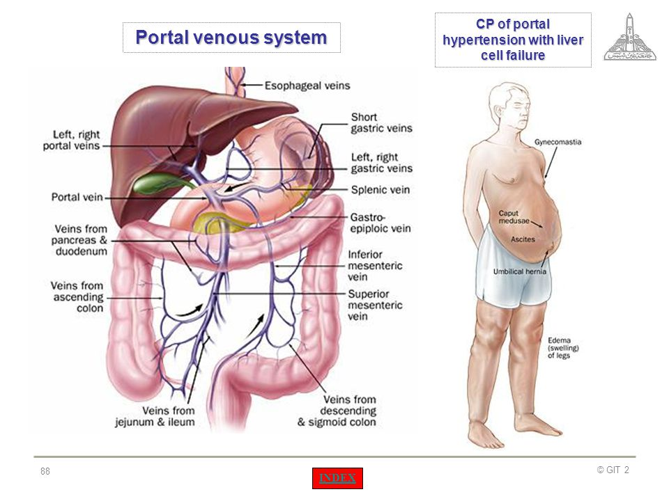 CP of portal hypertension with liver cell failure