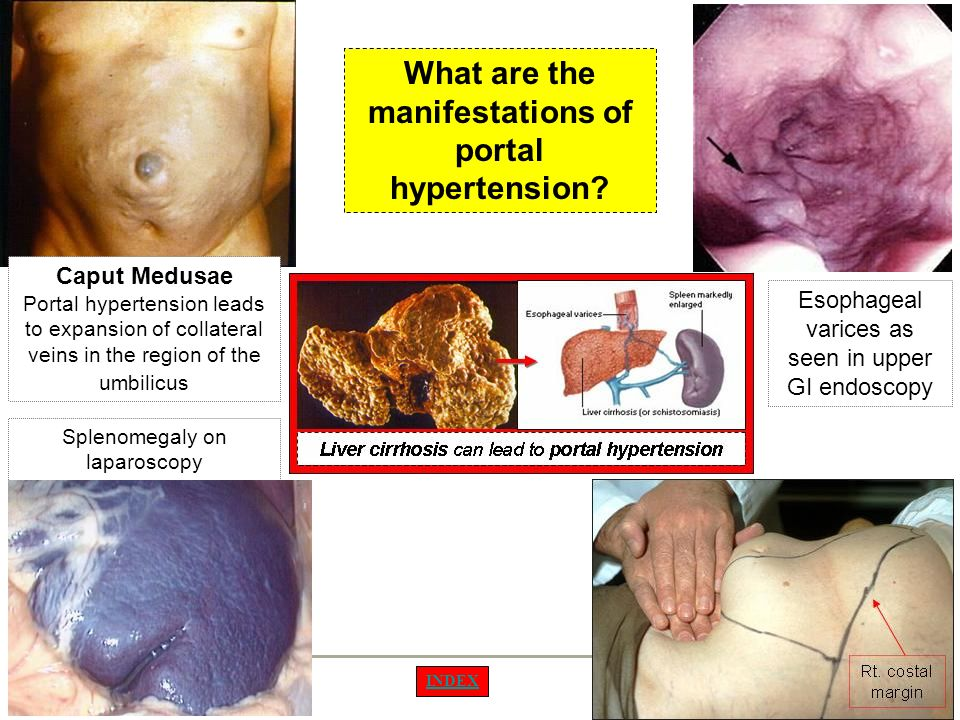 What are the manifestations of portal hypertension