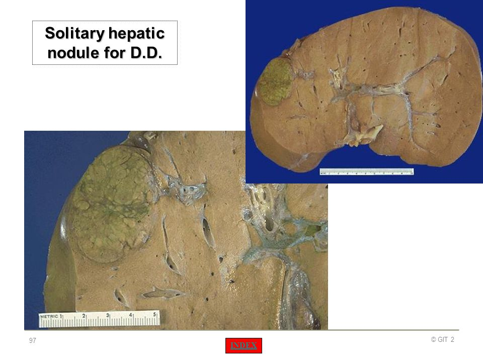 Solitary hepatic nodule for D.D.