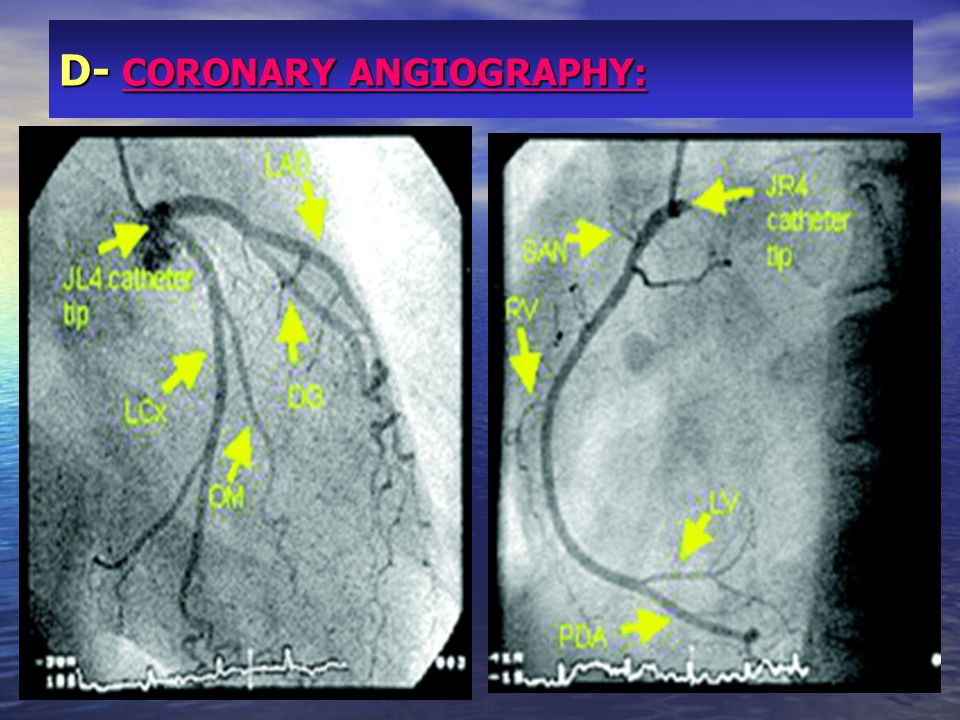 D- CORONARY ANGIOGRAPHY: