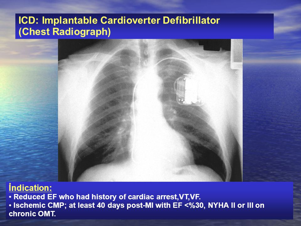 ICD: Implantable Cardioverter Defibrillator (Chest Radiograph)