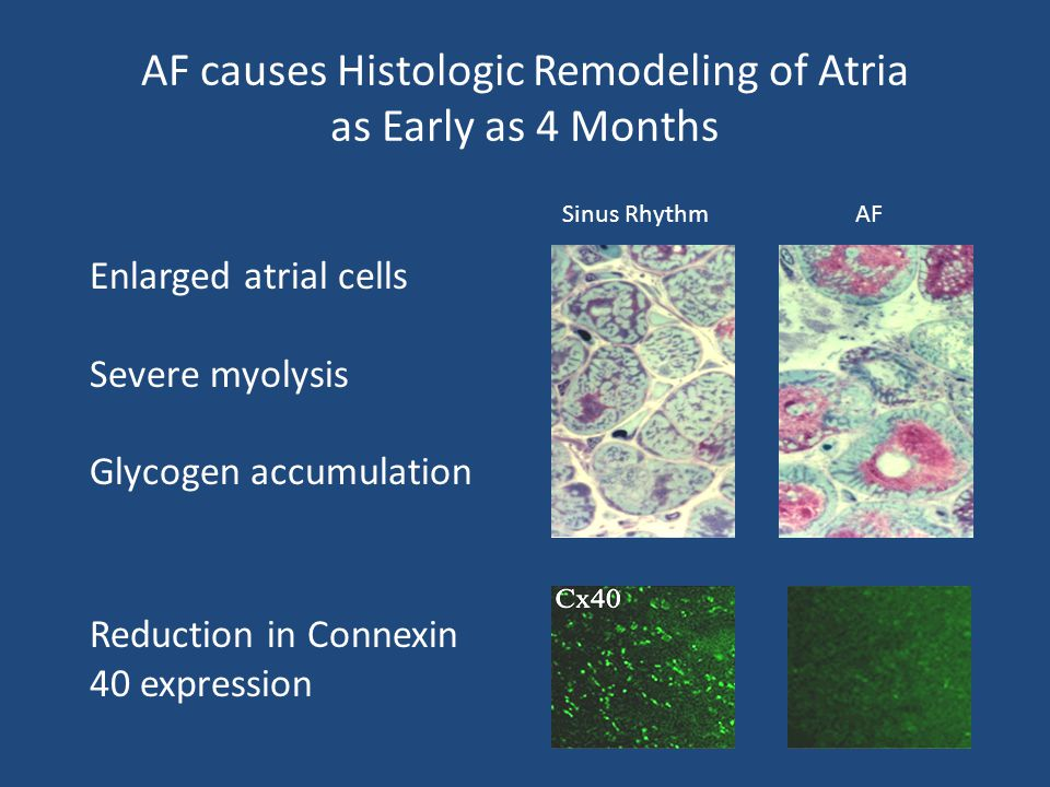 AF causes Histologic Remodeling of Atria as Early as 4 Months
