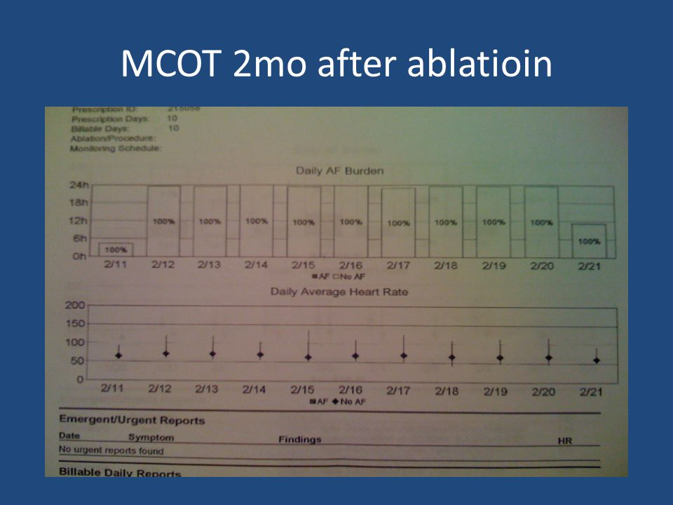MCOT 2mo after ablatioin