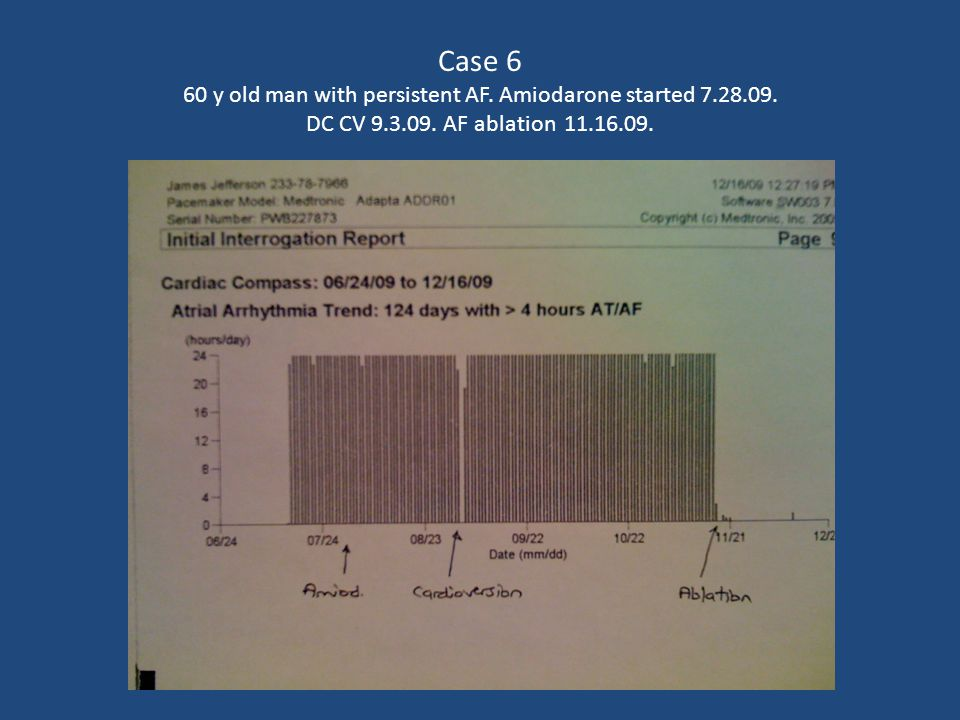 Case 6 60 y old man with persistent AF. Amiodarone started 7. 28. 09