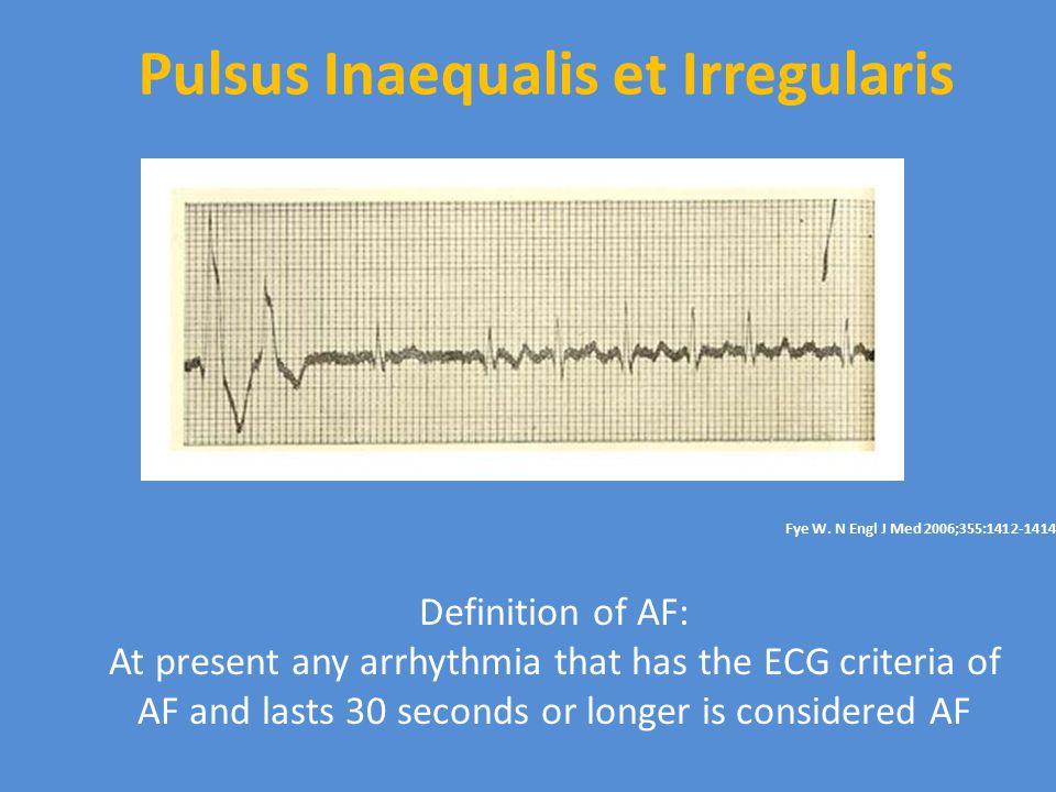 Pulsus Inaequalis et Irregularis