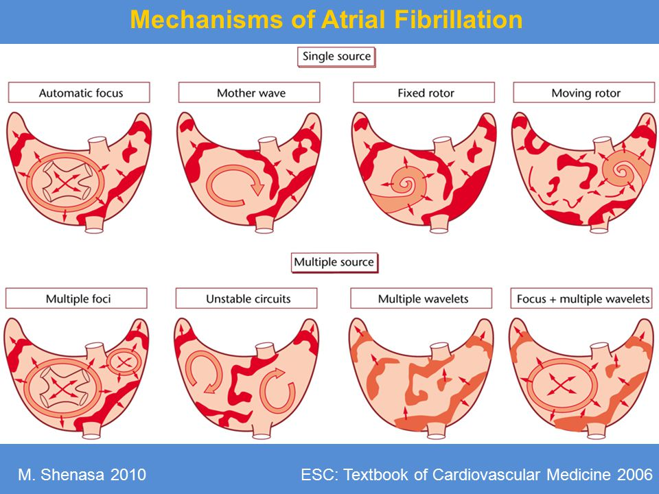 Mechanisms of Atrial Fibrillation
