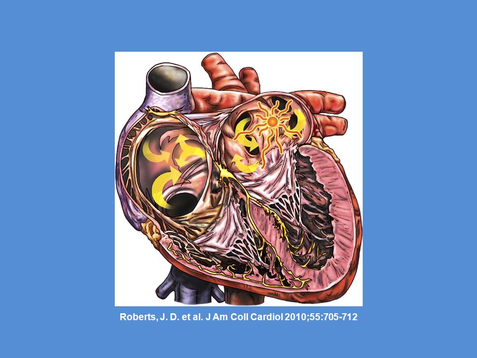 Roberts, J. D. et al. J Am Coll Cardiol 2010;55:705-712