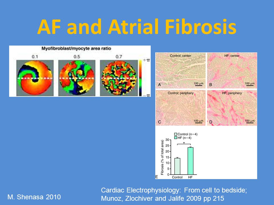 AF and Atrial Fibrosis Cardiac Electrophysiology: From cell to bedside; Munoz, Zlochiver and Jalife 2009 pp 215.