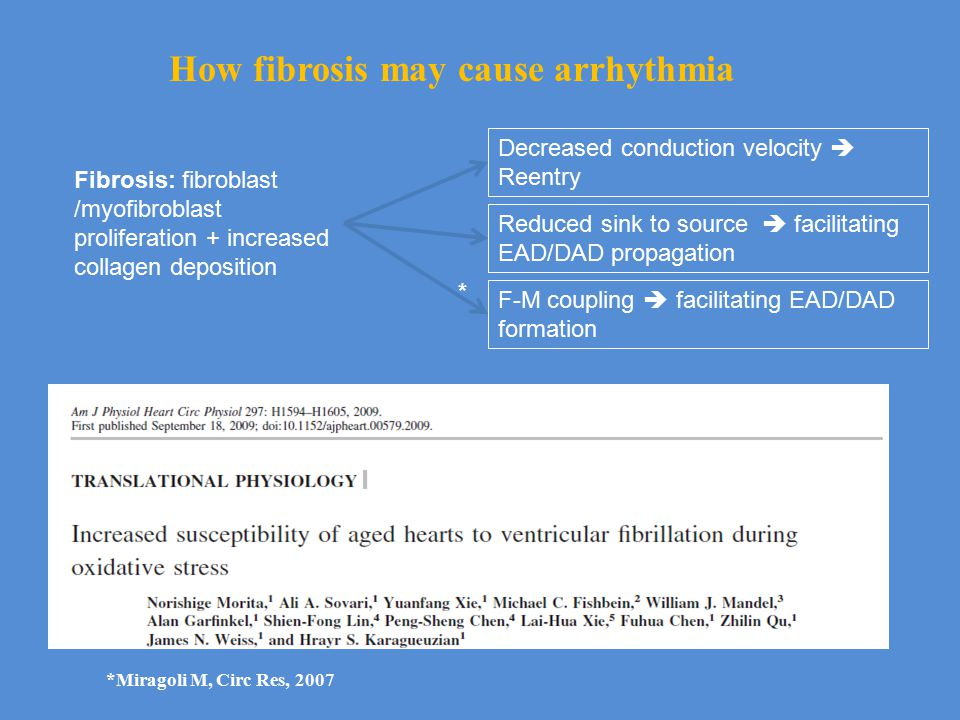 How fibrosis may cause arrhythmia