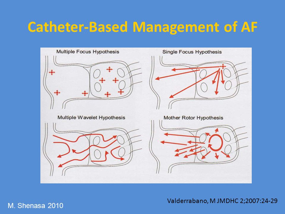 Catheter-Based Management of AF