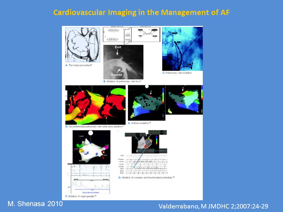 Cardiovascular Imaging in the Management of AF