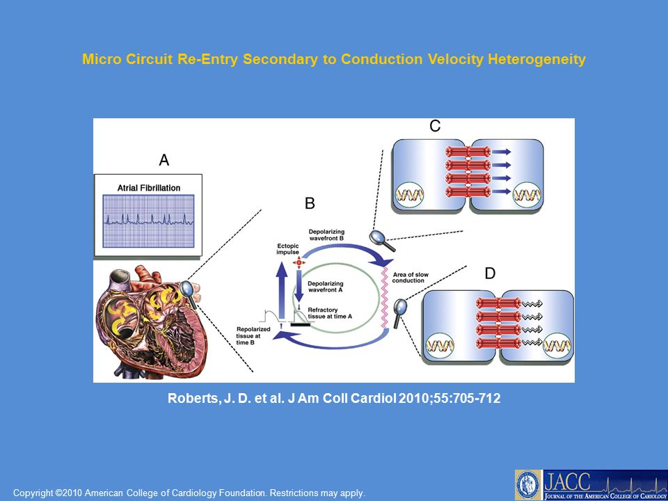 Micro Circuit Re-Entry Secondary to Conduction Velocity Heterogeneity
