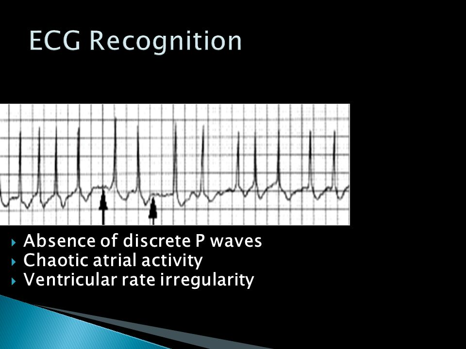 ECG Recognition Absence of discrete P waves Chaotic atrial activity