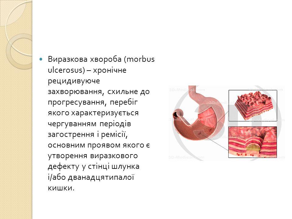Виразкова хвороба (morbus ulcerosus) – хронічне рецидивуюче захворювання, схильне до прогресування, перебіг якого характеризується чергуванням періодів загострення і ремісії, основним проявом якого є утворення виразкового дефекту у стінці шлунка і/або дванадцятипалої кишки.
