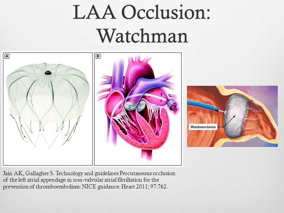 LAA Occlusion: Watchman