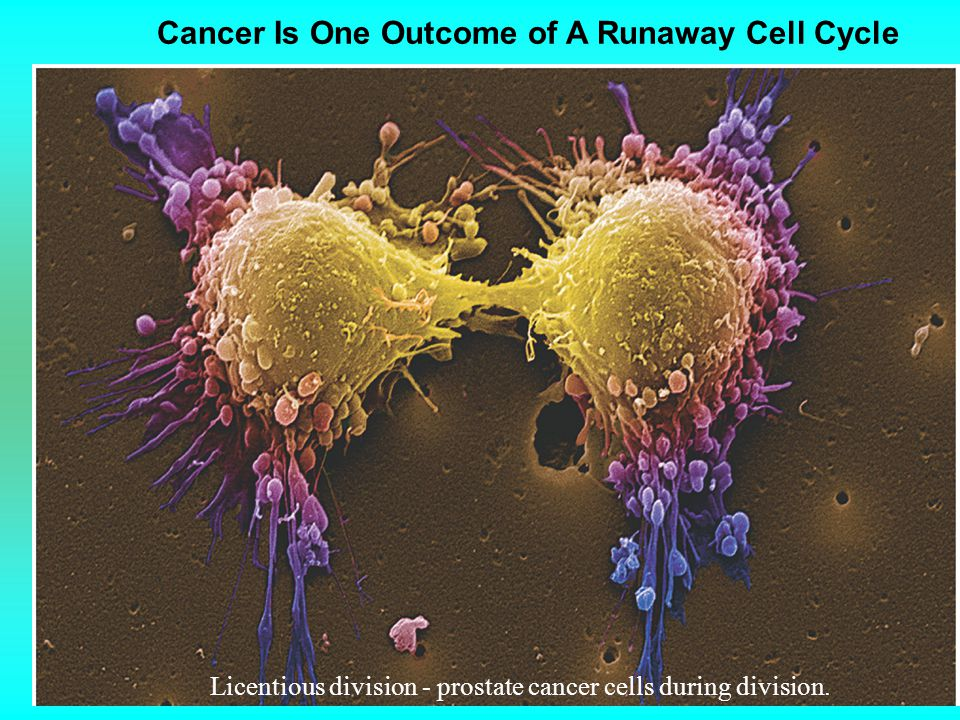 Cancer Is One Outcome of A Runaway Cell Cycle