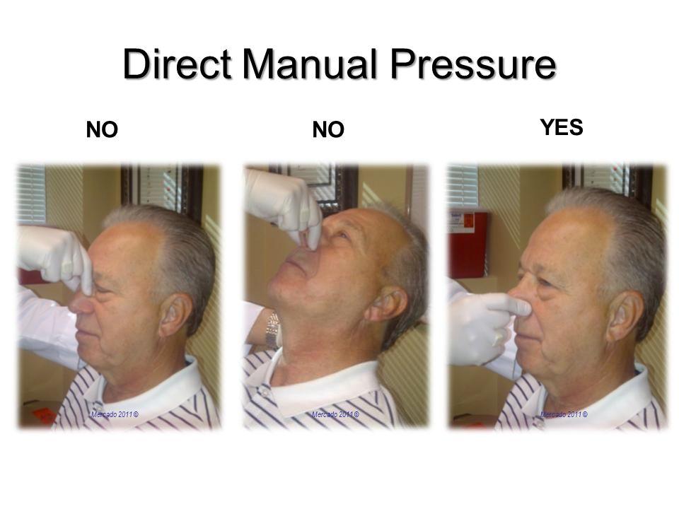 Direct Manual Pressure