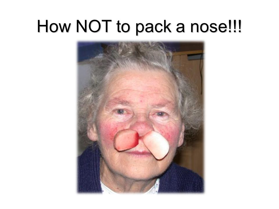 How NOT to pack a nose!!!