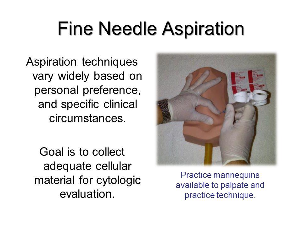 Fine Needle Aspiration