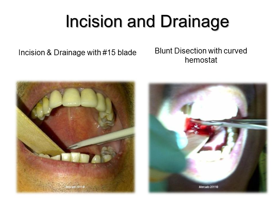 Incision and Drainage Incision & Drainage with #15 blade