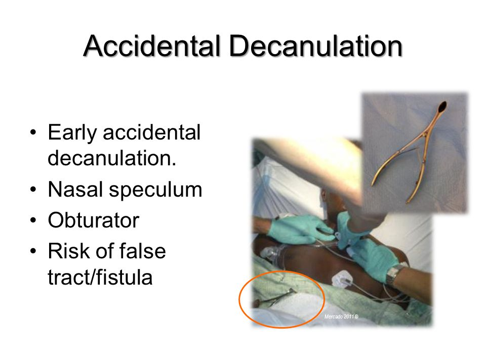 Accidental Decanulation