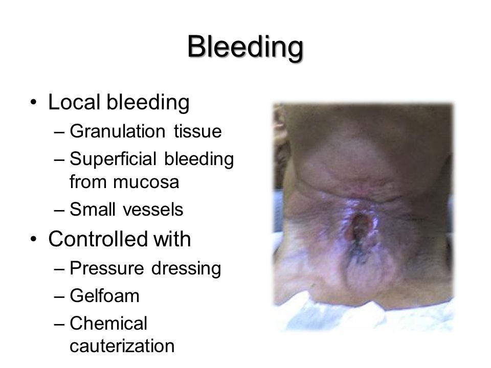 Bleeding Local bleeding Controlled with Granulation tissue
