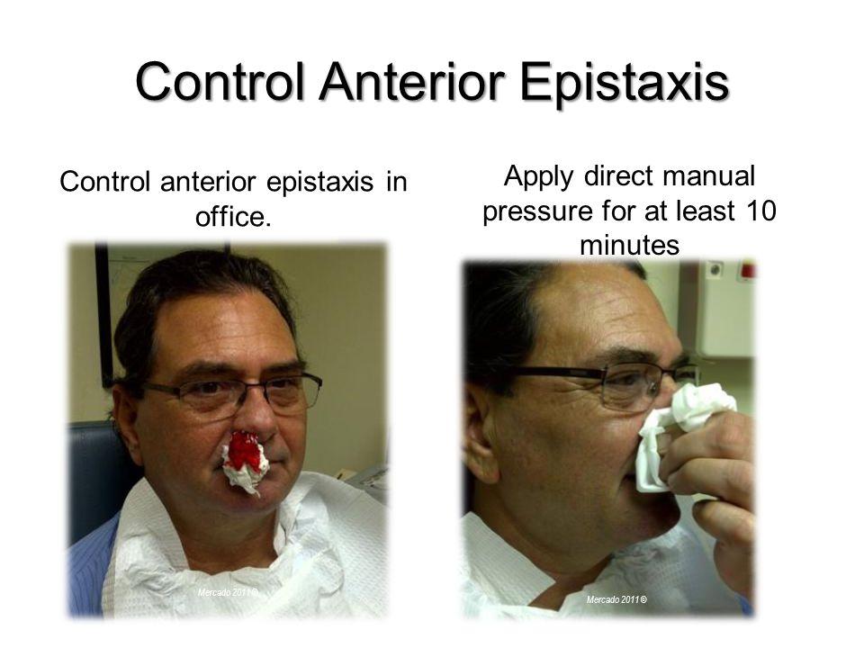 Control Anterior Epistaxis