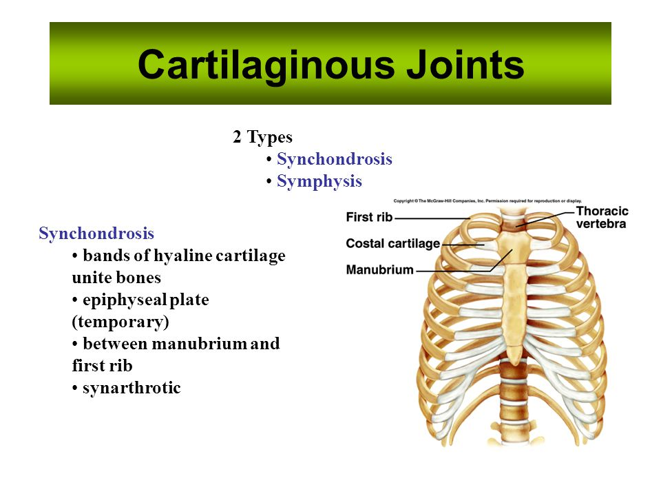 Cartilaginous Joints 2 Types Synchondrosis Symphysis Synchondrosis