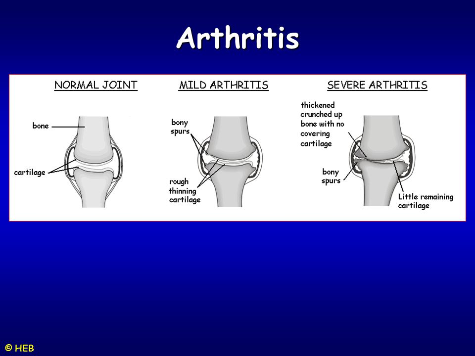 Arthritis © HEB