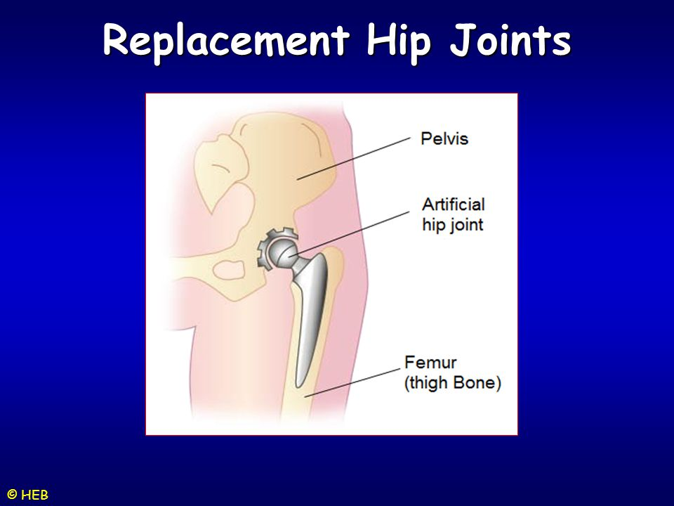Replacement Hip Joints