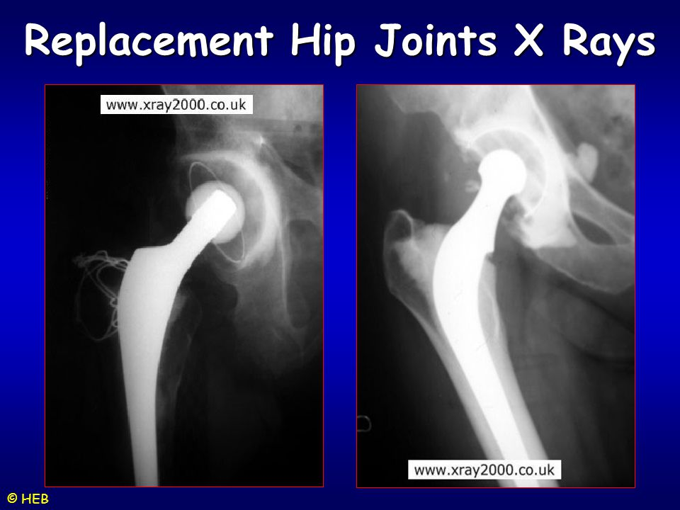 Replacement Hip Joints X Rays