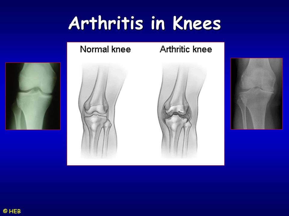 Arthritis in Knees © HEB