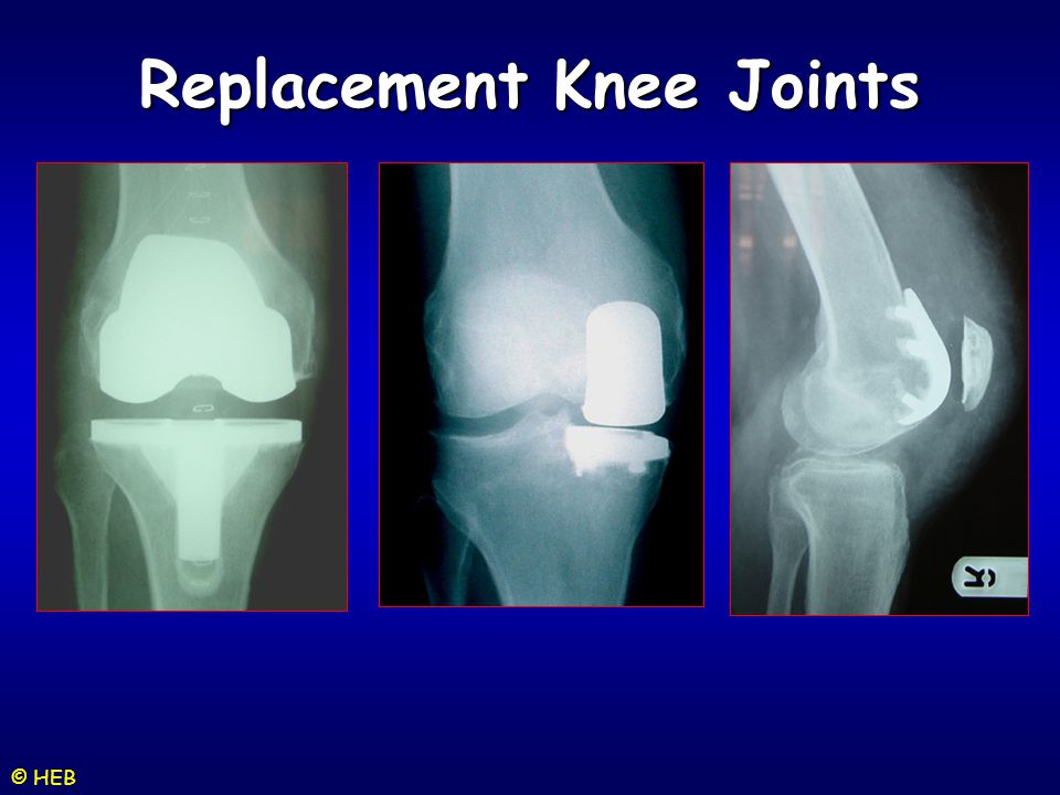 Replacement Knee Joints