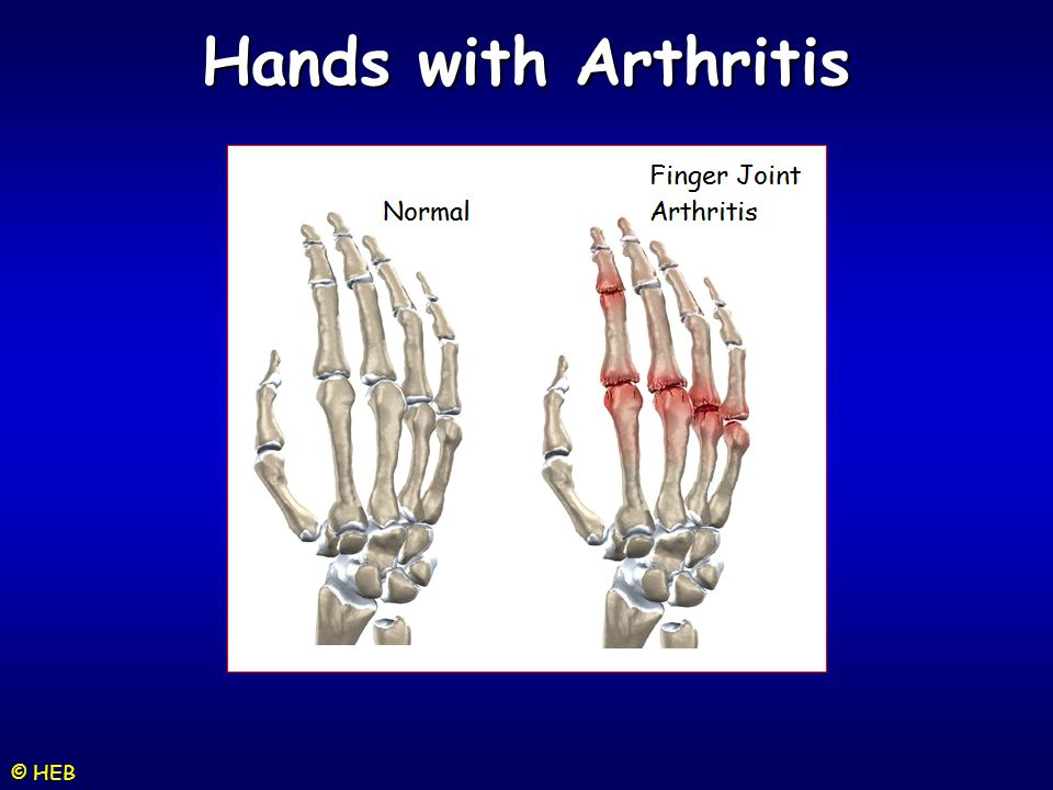 Hands with Arthritis © HEB