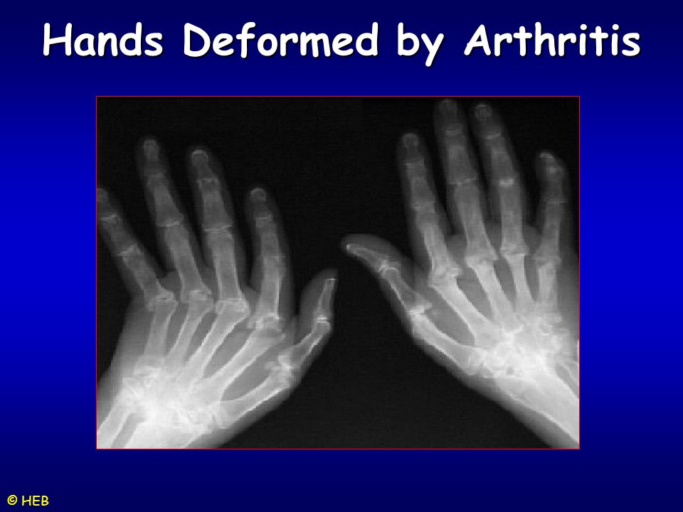 Hands Deformed by Arthritis