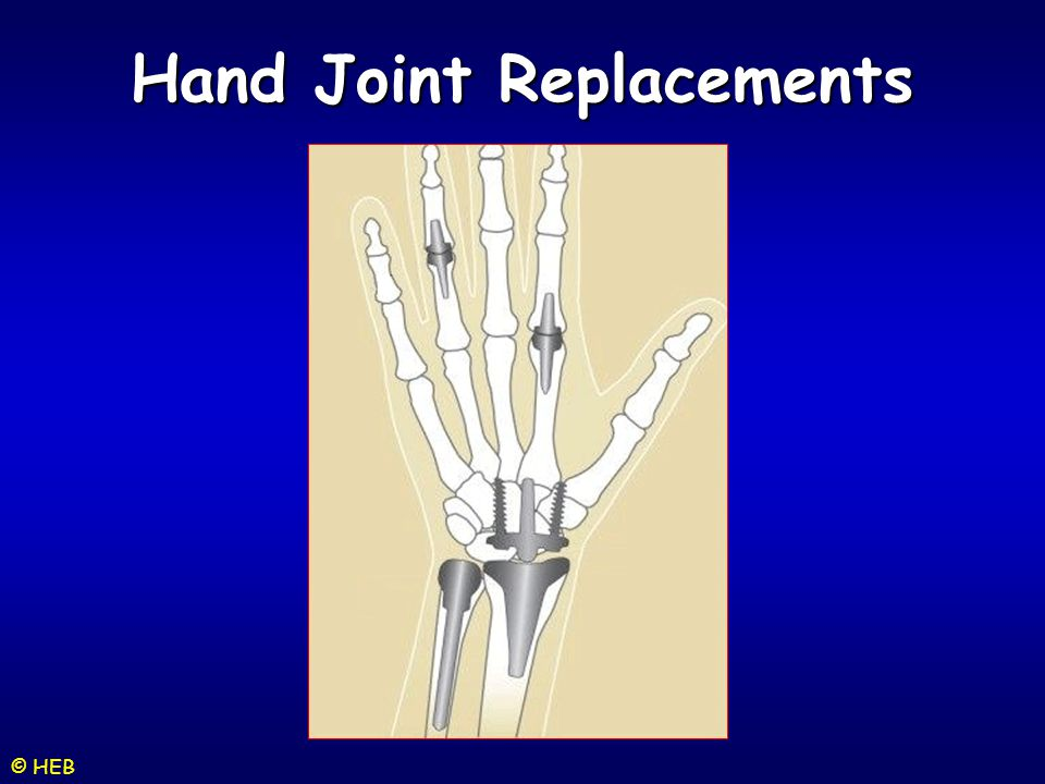 Hand Joint Replacements