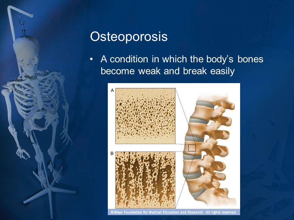 Osteoporosis A condition in which the body's bones become weak and break easily
