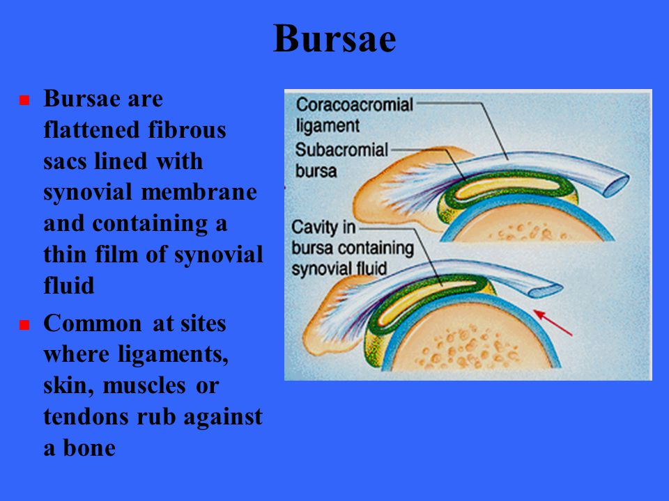 Bursae Bursae are flattened fibrous sacs lined with synovial membrane and containing a thin film of synovial fluid.